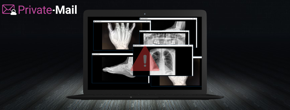 Millions of Americans' X-Rays, MRIs, and CT Scans are Freely Available Online